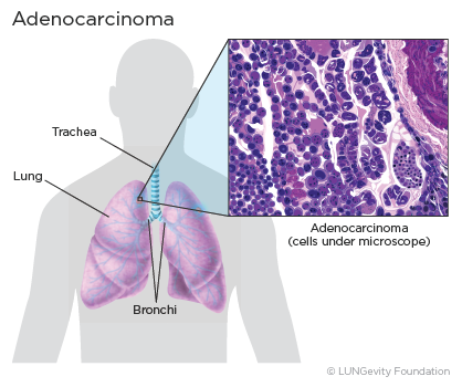 Lung Adenocarcinoma | LUNGevity Foundation Аденокарцинома Легкого