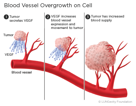 Blood vessel overgrowth