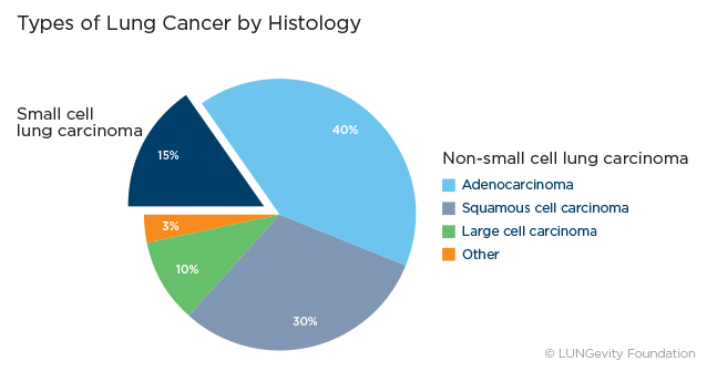 overview of small cell lung cancer essay