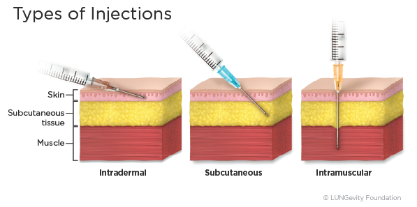 Types of injections