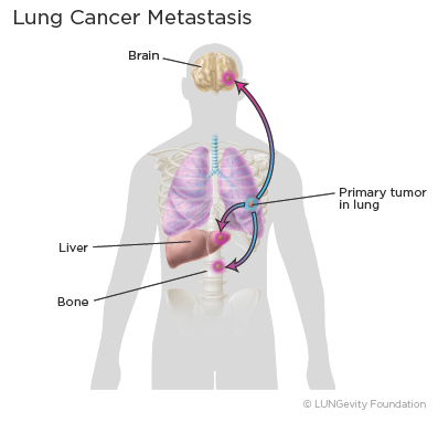 Lung cancer metastasis illustration