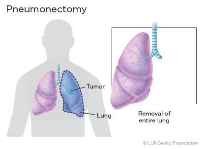 Pneumonectomy