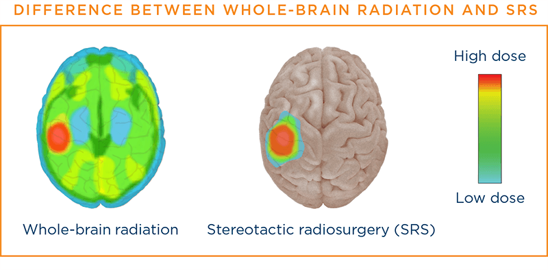 Difference between whole-brain radiation and SRS