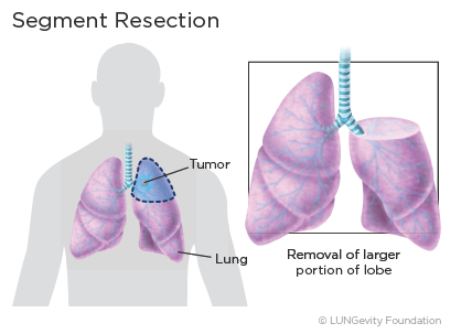 Segment resection