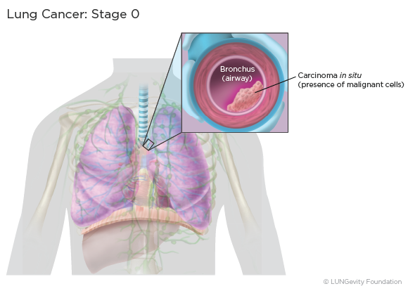 Lung Cancer Staging Lungevity Foundation