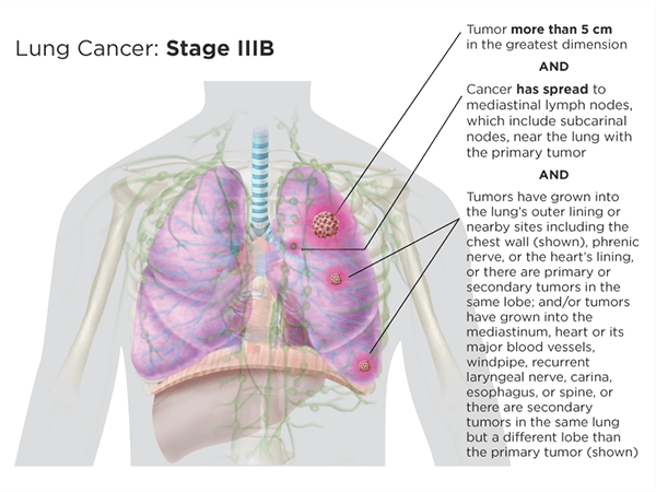 Lung Cancer Staging | LUNGevity Foundation