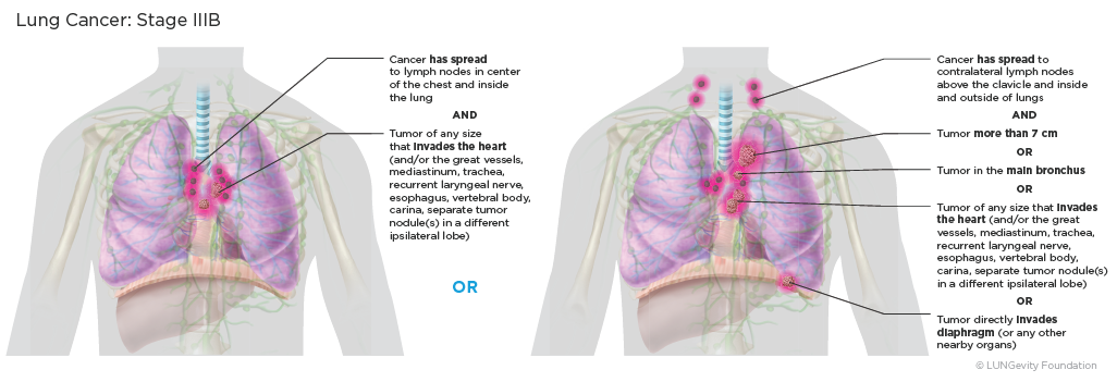 Lung cancer: stage IIIb