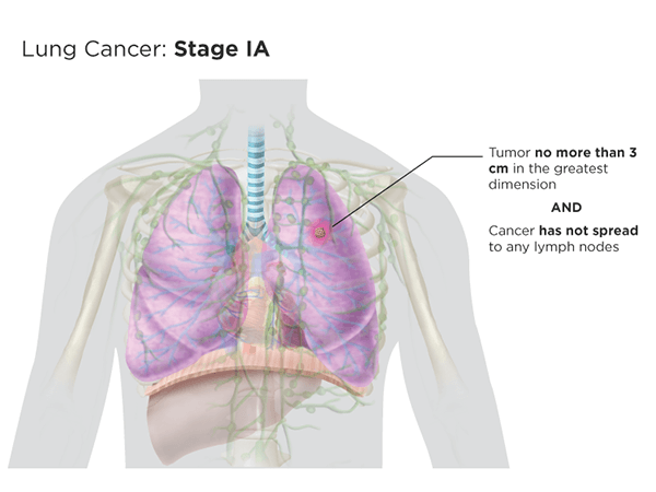 Lung cancer: stage Ia