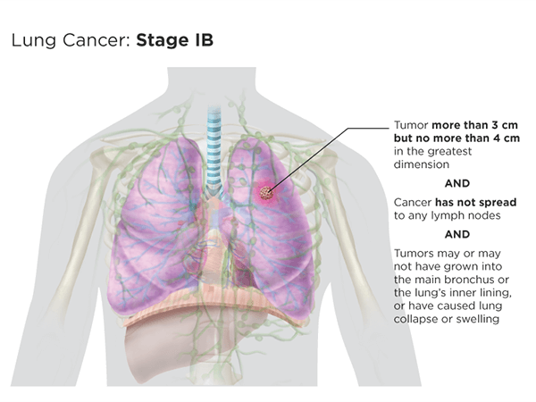 Lung cancer: stage Ib